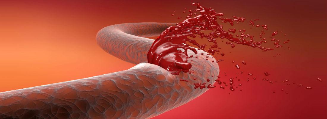 hemofilia en mujeres